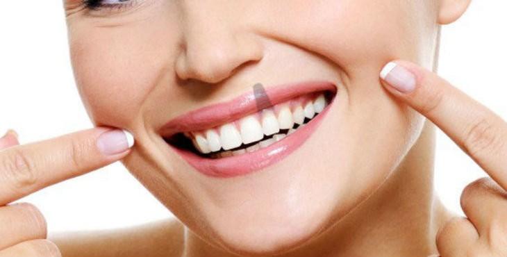 ¿Que se siente con implantes dentales? - Clínica Am Odontología