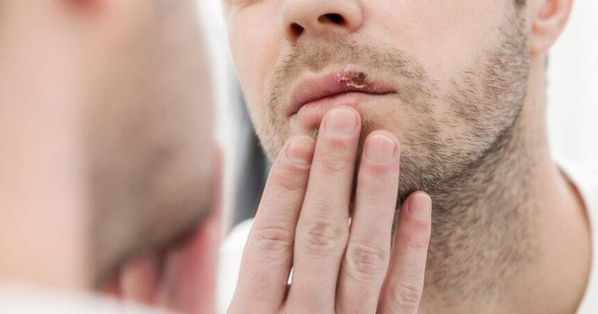 Herpes labial 5 causas que lo provocan