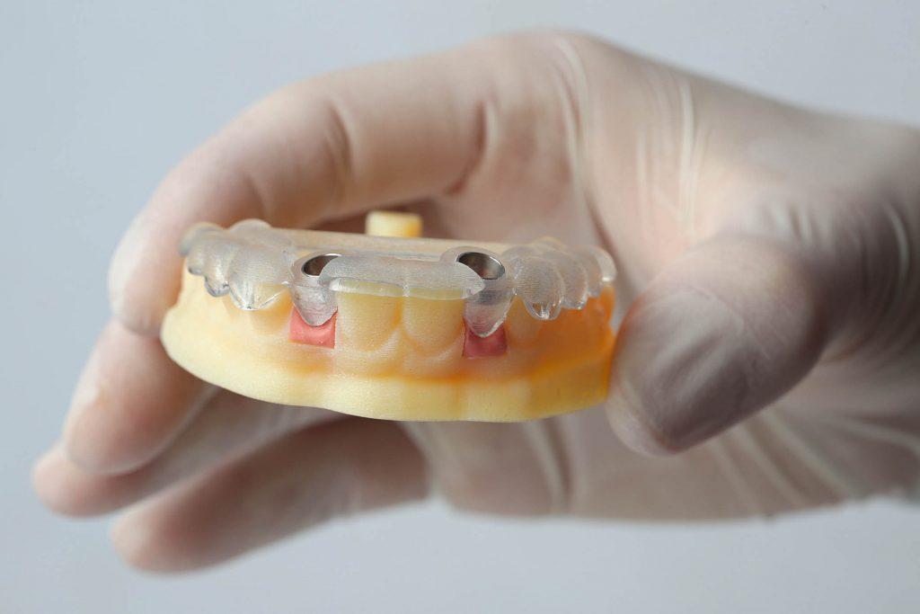 implantología guiada
