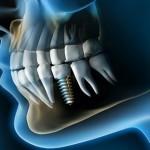¿Qué se siente con implantes dentales?