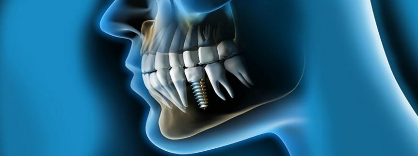 ¿Qué se siente con implantes dentales? - Am Odontología