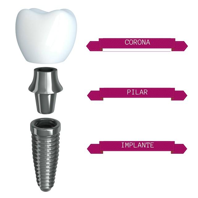 Implantes y coronas dentales en Toledo