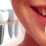 Implantes dentales….¿Cuando recurrir a ellos?