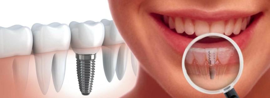 implantes dentales cuando