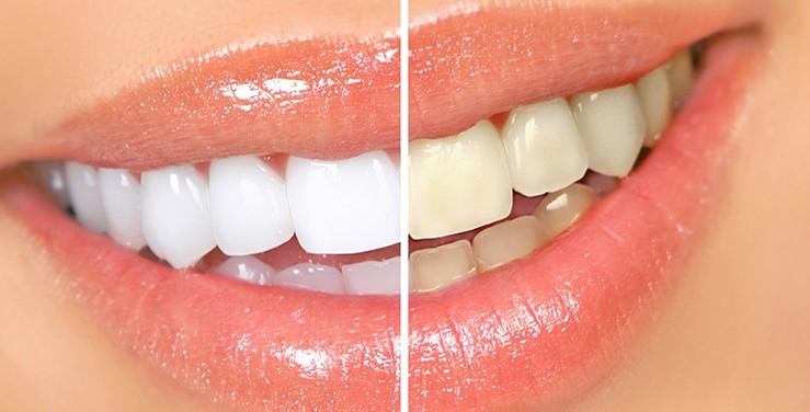 estetica dental toledo blanqueamiento