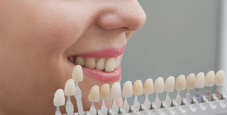 estetica dental toledo carillas