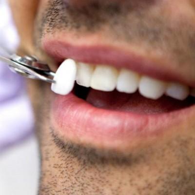 carillas dentales toledo