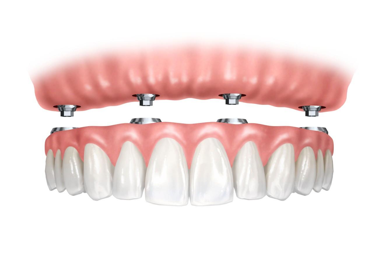 Qué son los implantes All on 4 - Clínica Am Odontología