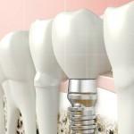 ¿Que son las prótesis dentales sobre implantes?