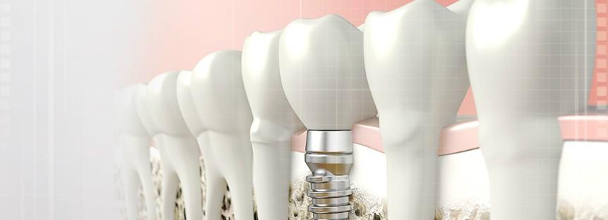 protesis dental toledo