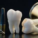 Todo lo que necesitas saber antes de ponerte un Implante dental