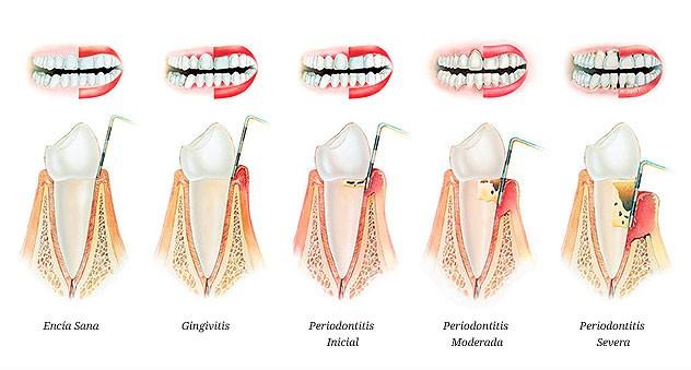 fases-gingivitis-periodontitis