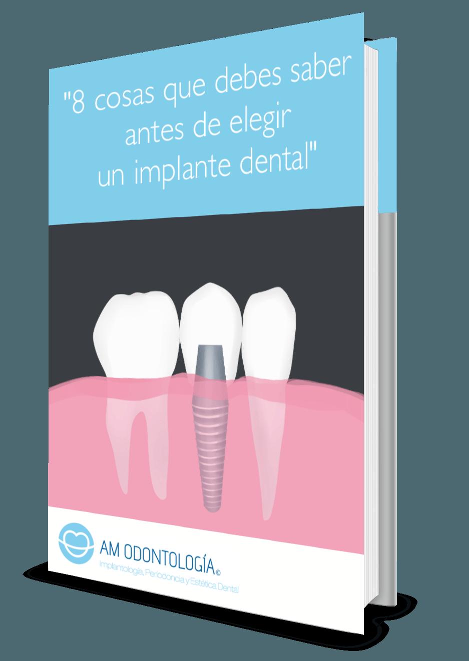 Guia sobre implante dental