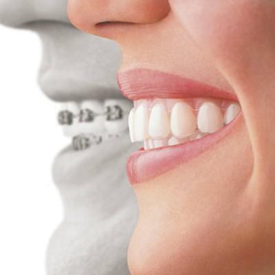 ortodoncia en toledo
