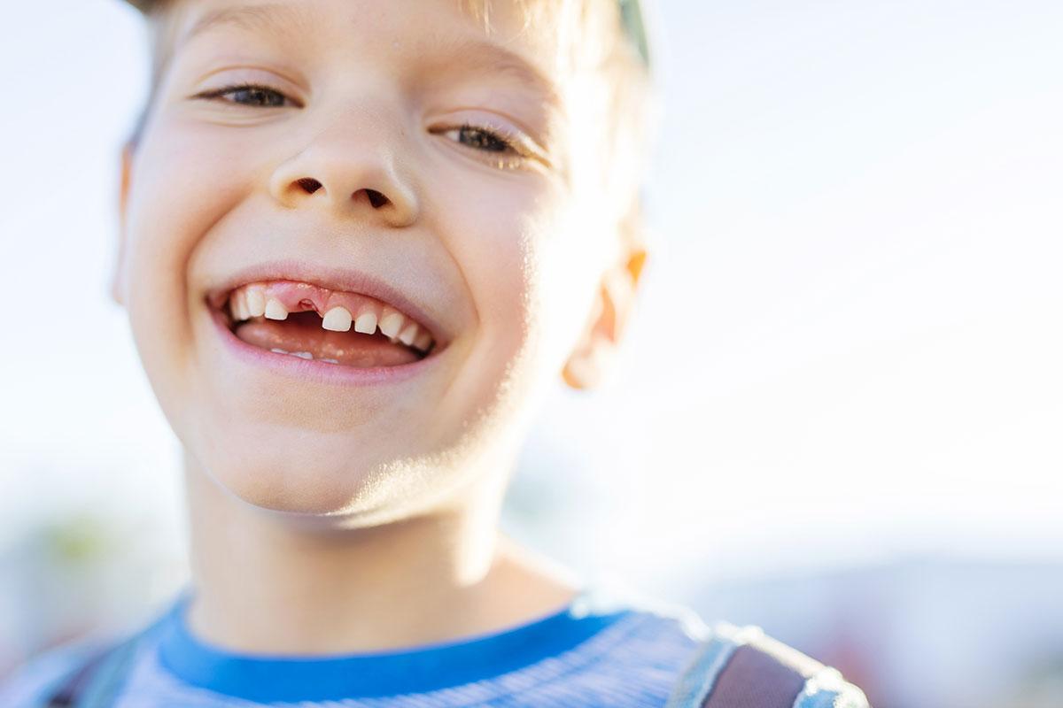 ¿Qué es la avulsión dental? - Clínica Dental en Toledo | AM Odontología