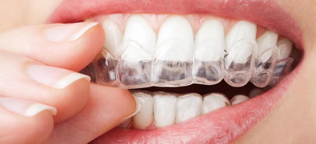 ortodoncia invisible toledo