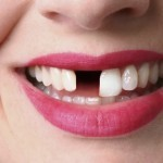 4 razones para usar implantes dentales al perder un diente