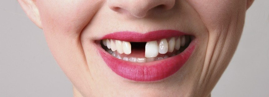 perder un diente