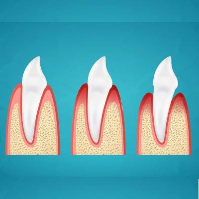 Periodoncia - Clínica Dental en Toledo | AM Odontología
