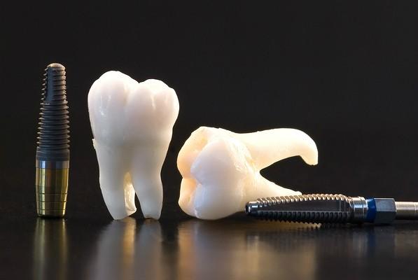 clinica dental toledo materiales