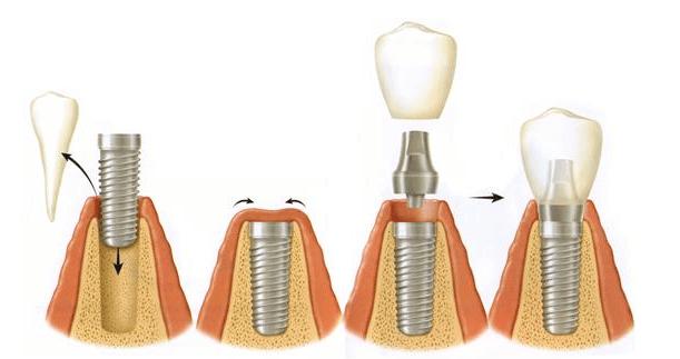 proceso-colocacion-implante-dental