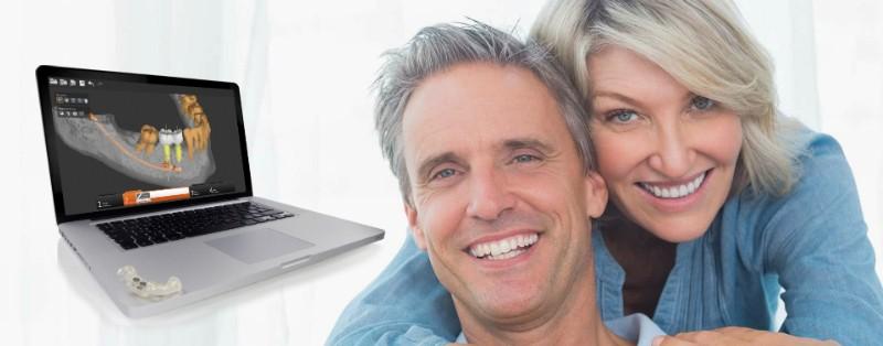 ¿Un tratamiento de Implantes Sin Dolor? Si, es posible